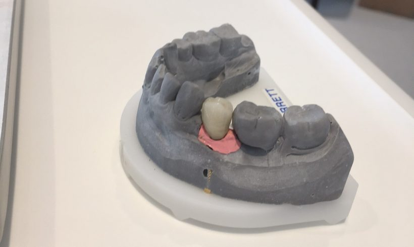 Implant Crown fitted just in time for Christmas dinner