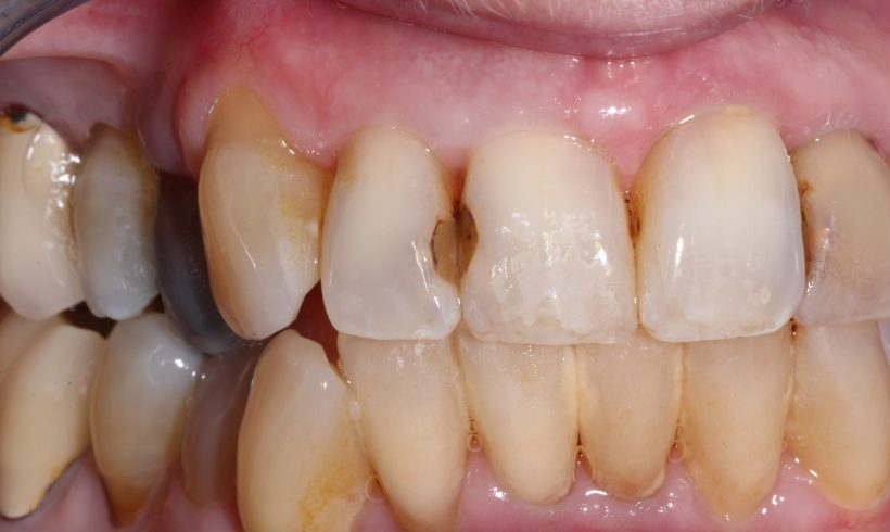 Replace Old White Fillings