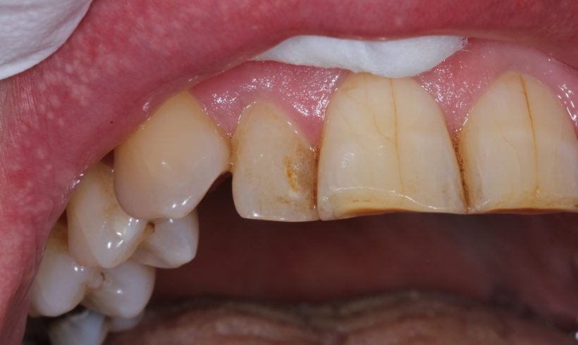 Cosmetic White Fillings in Gloucester